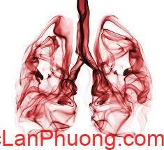 Tong quan ve can benh ung thu phoi (1)