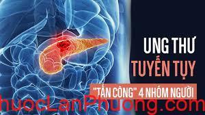 Tìm hiểu về ung thư tuyến tụy phòng ngừa và điều trị ung thư tuyến tụy (2)