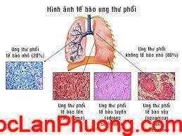Ung thư phổi các triệu chứng và dấu hiệu nhận biết sớm nhất (1)