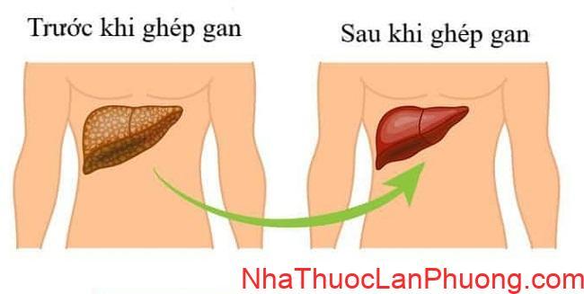 phuong phap dieu tri ung thu gan pho bien (2)