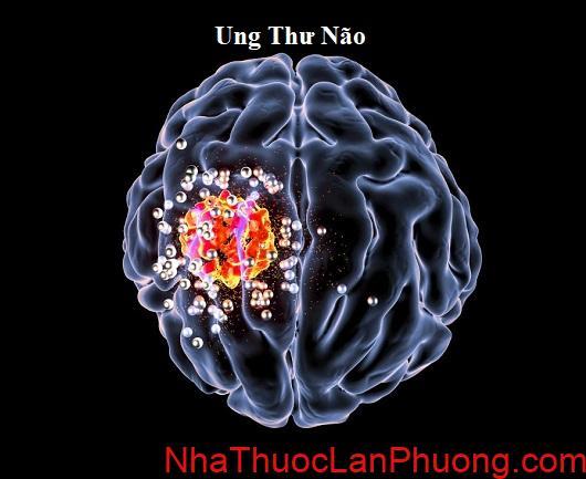 Tim hieu ve benh ung thu nao (3)