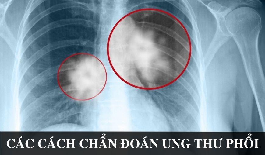 Cac-phuong-phap-chuan-doan-va-xet-nghiem-ung-thu-phoi