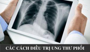 Cac-phuong-phap-dieu-tri-ung-thu-phoi