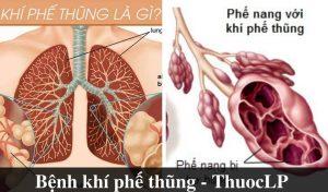 benh-khi-phe-thung-la-gi-nguyen-nhan-trieu-chung-cach-dieu-tri