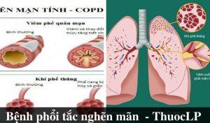 benh-phoi-tac-nghen-man-tinh-la-gi-nguyen-nhan-trieu-chung-cach-dieu-tri