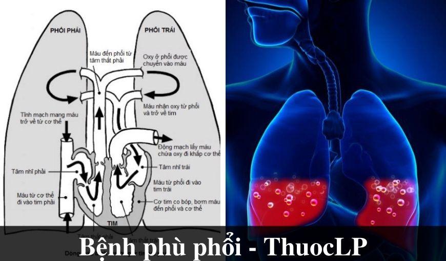 benh-phu-phoi-la-gi-nguyen-nhan-trieu-chung-cach-dieu-tri