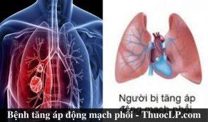 benh-tang-ap-dong-mach-phoi-la-gi-nguyen-nhan-trieu-chung-cach-dieu-tri