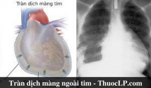 benh-tran-dich-mang-ngoai-tim-la-gi-naguyen-nhan-trieu-chung-cach-dieu-tri