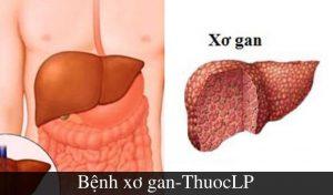 benh-xo-gan-la-gi-nguyen-nhan-trieu-chung-cach-dieu-tri