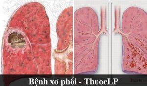 benh-xo-phoi-la-gi-nguyen-nhan-trieu-chung-cach-dieu-tri