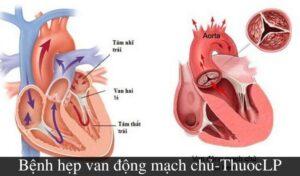 benh-hep-van-dong-mach-chu-la-gi-nguyen-nhan-trieu-chung